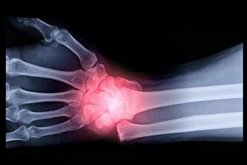 radiographie fracture de poignet gauche