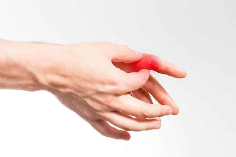 pr-eric-roulot-chirurgie-main-paris-chirurgie-doigt-douleur-au-doigt