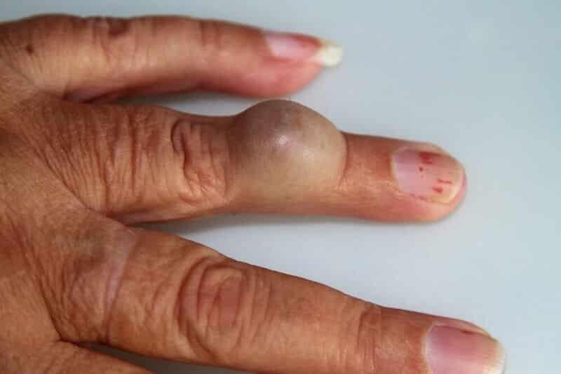pr-eric-roulot-chirurgie-main-paris-chirurgie-doigt-kyste-au-doigt