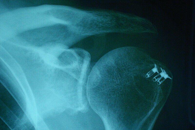 radiographie-epaule-operation-epaule-soigner-rupture-de-la-coiffe-des-rotateurs-rupture-de-coiffe-epaule