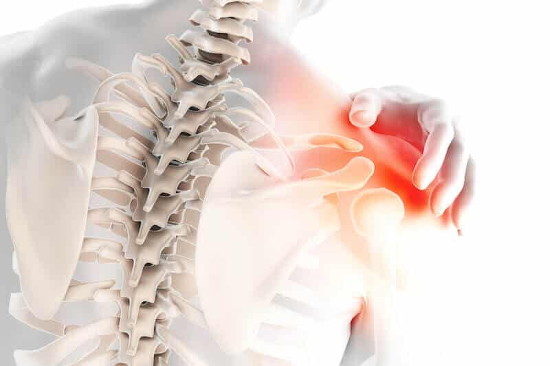 anatomie épaule droite - douleur epaule cause - arthrose acromio claviculaire ou omarthrose