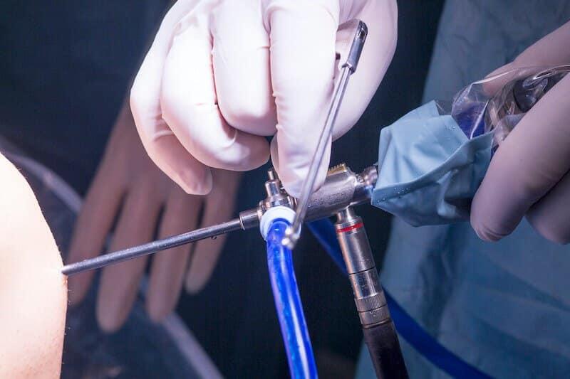 professeur eric roulot - chirurgie de l épaule paris - arthroscopie épaule - opération de l épaule par arthroscopie