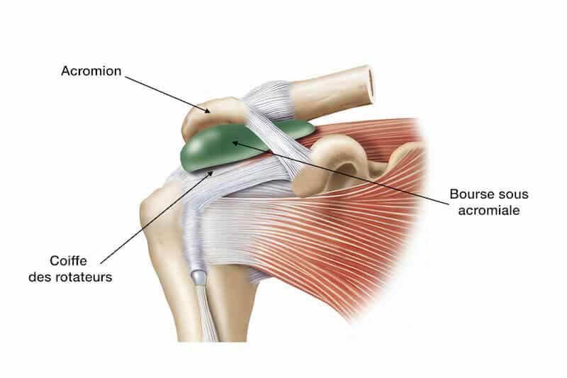 anatomie épaule bourse sous-acromiale deltoidienne - douleur épaule nuit