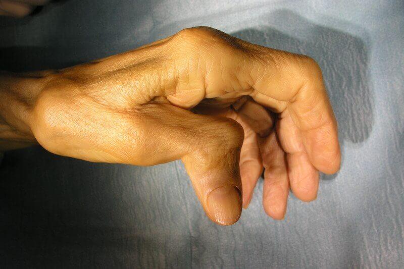 Arthrose deformation de la main