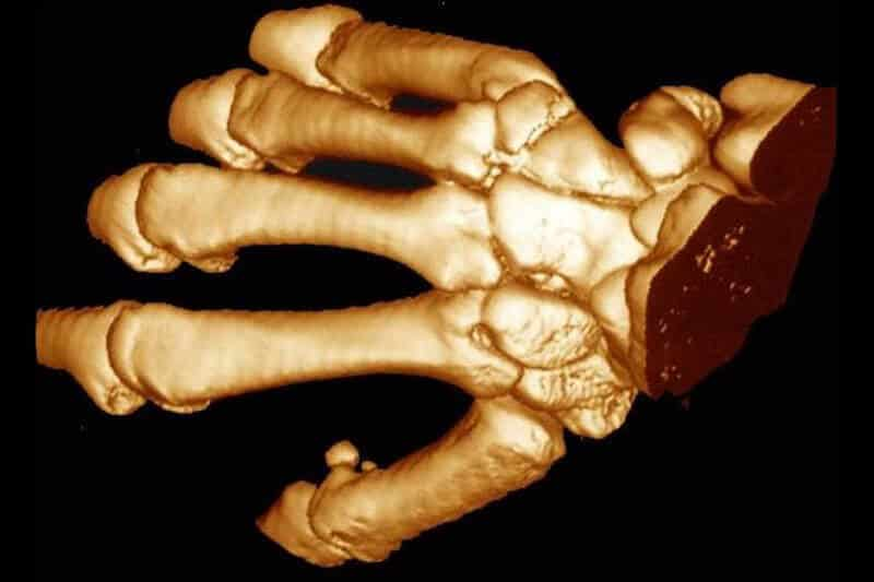 examen-main-scanner-de-la-main-articulation-carpo-métacarpienne