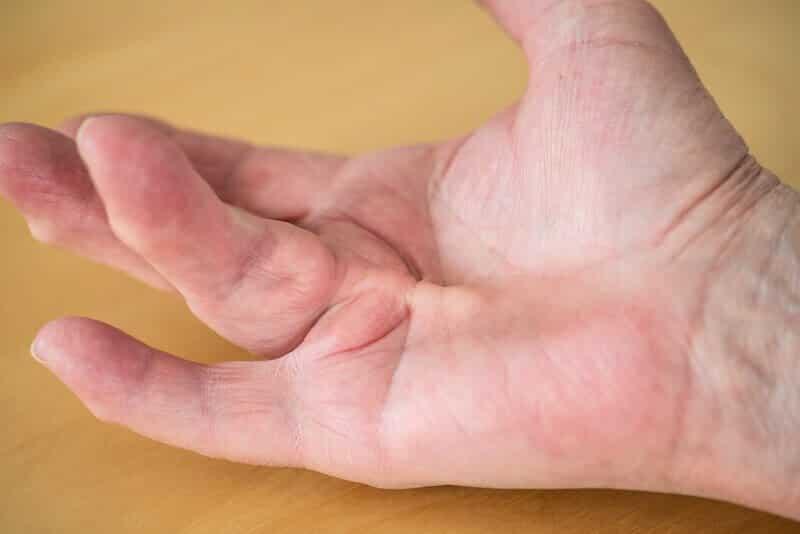 main-maladie-de-dupuytren-femme-corde-rétractile-dupuytren-4-doigt