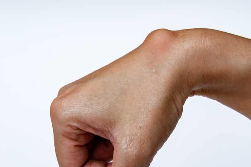 maladie-de-la-main-kyste-sur-la-main-droite-boule-poignet-droit