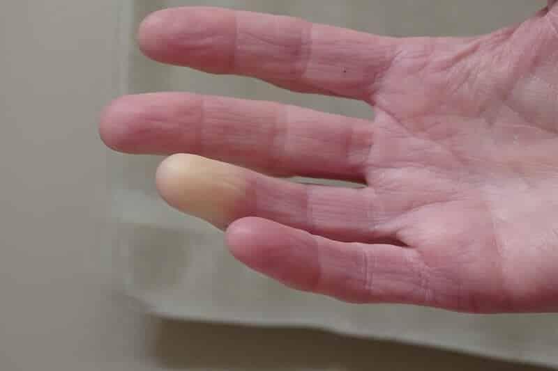 maladie-main-droite-syndrome-de-raynaud-photo