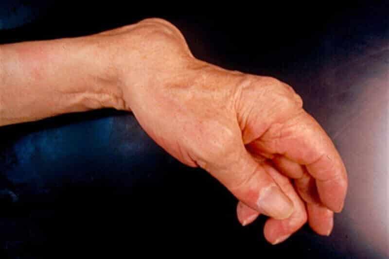 pathologie-rhumatismale-polyarthrite-rhumatoide-des-mains-main gauche déformée