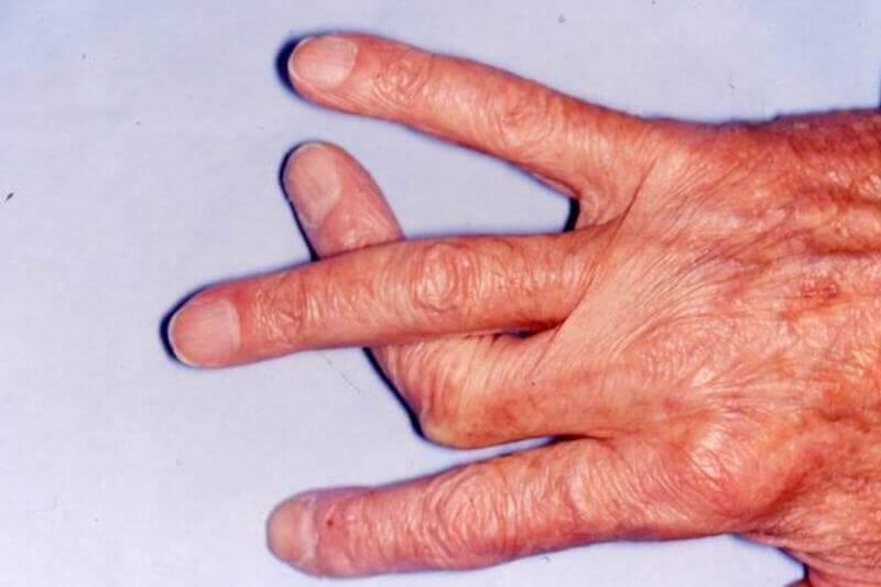 consultation chirurgie des doigts paris luxation du doigt