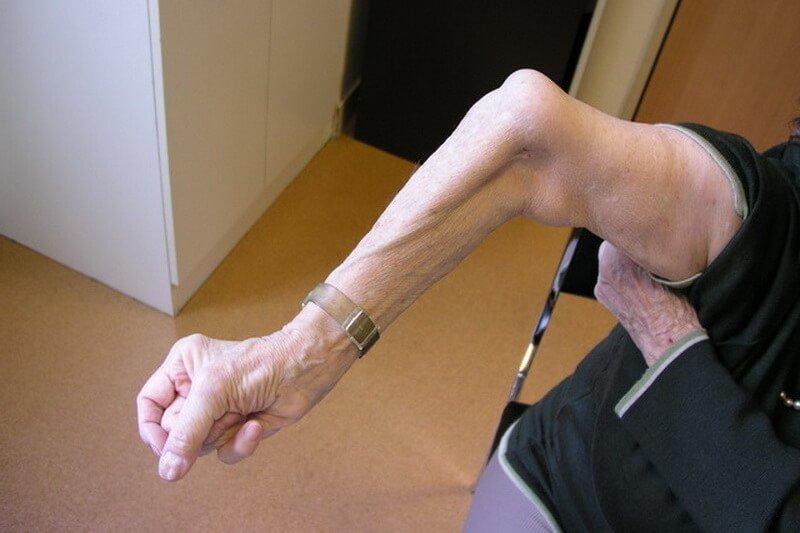 consultation chirurgie paris fracture du coude