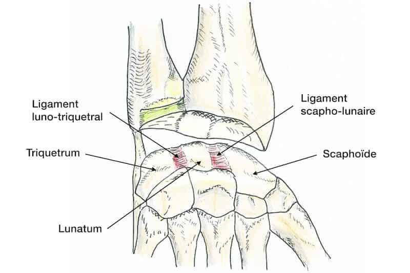 dome-du-carpe-de-la-main-droite-ligament-scapho-lunaire-ligament-luno-triquetral