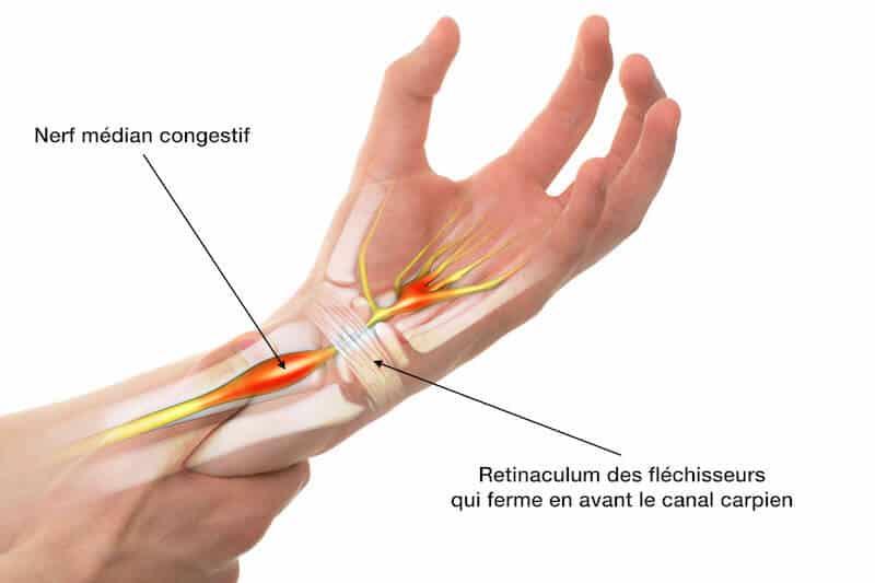 main-maladie-syndrome-carpien-poignet-compression-du-nerf-médian