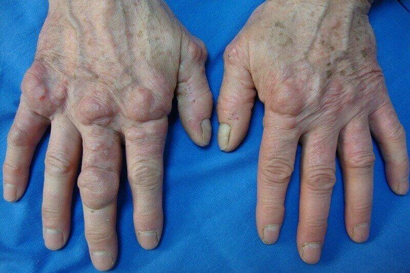 nodule doigt de la main