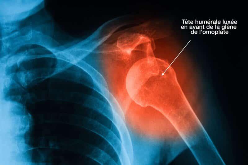 arthrose de l épaule symptomes - radio luxation épaule non réduite - arthrose épaule cause