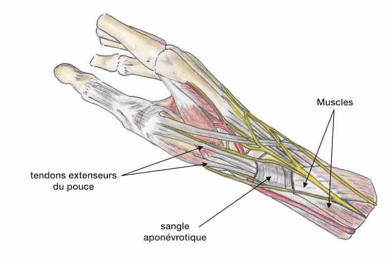 tendinite quervain tenosynovite quervain tendinite pouce - tendon flechisseur pouce anatomie - tendon long abducteur du pouce gaine synoviale tendineuse
