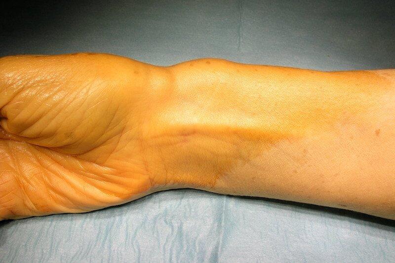 tenosynovite flechisseur pouce droit - douleur base du pouce droit avec gonflement poignet de la main