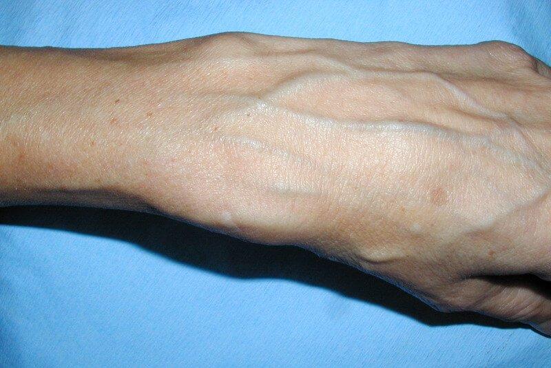 tendinite de quervain diagnostic - tenosynovite quervain-test-tendinite pouce-examen clinique du poignet-manoeuvre de finkelstein- douleur au poignet avec gonflement