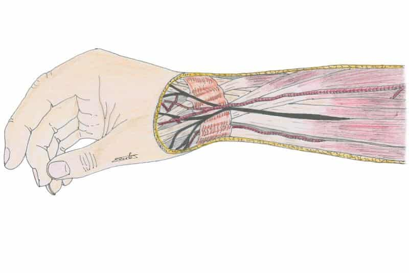 tendinite de quervain opération - operation tendon flechisseur pouce - anatomie tendon long extenseur du pouce