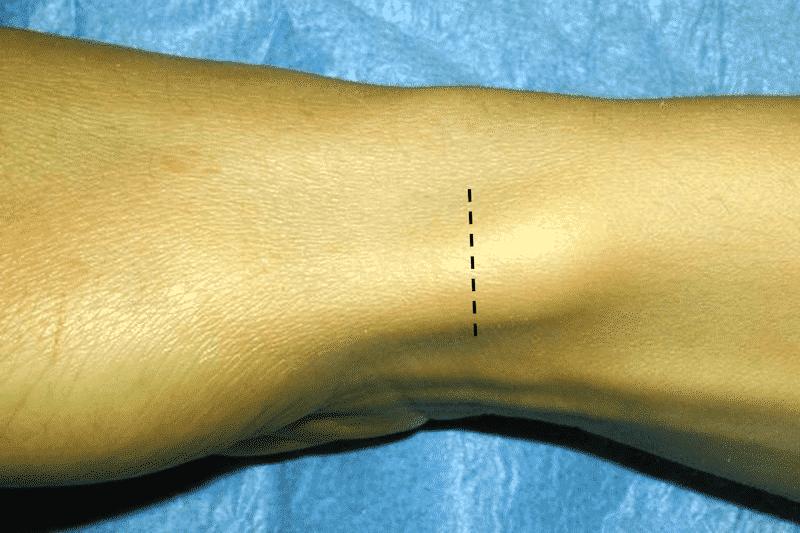 Quervain opération - incision zone de cicatrice pouce - zone de cicatrice après opération