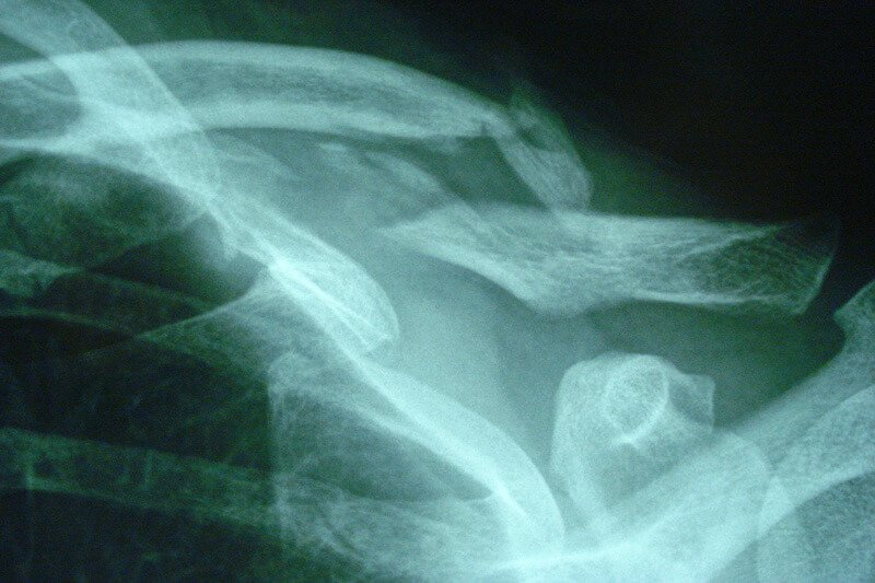 traumatisme epaule gauche - fracture du tiers moyen de la clavicule