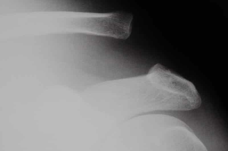 luxation acromio-claviculaire stade 3 - traumatisme épaule gauche