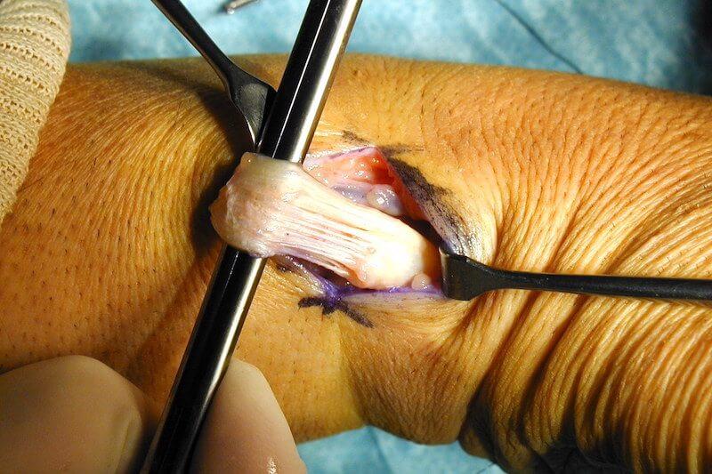 tendinite de quervain opération - vue tendon pouce abimé avant chirurgie du poignet