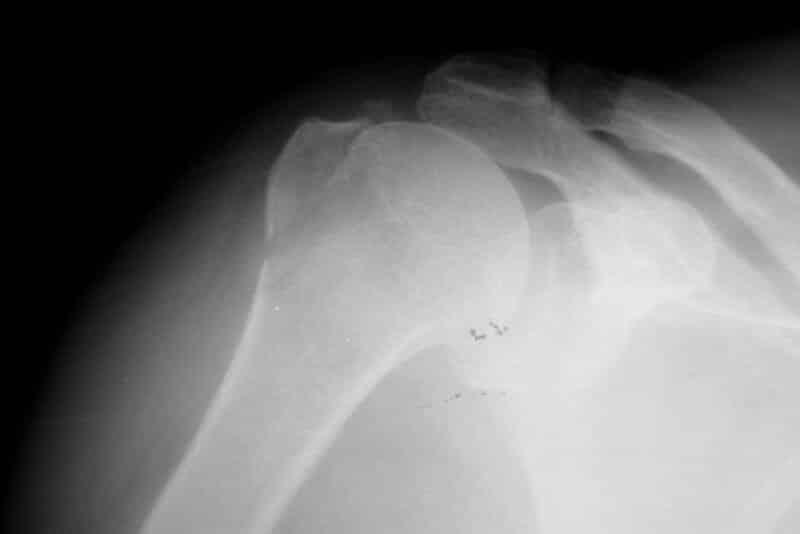 Réduction favorable de la luxation gleno humerale - réduction fracture trochiter droit par manoeuvre externe