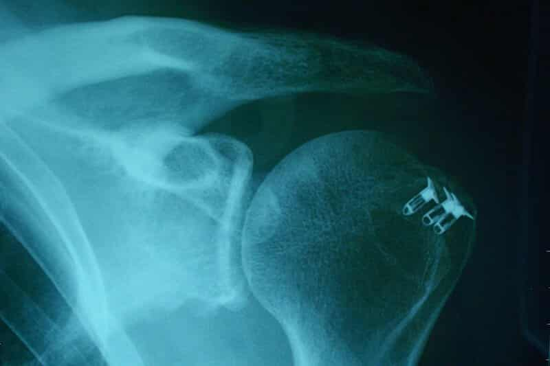 opération coiffe rotateurs épaule - arthroscopie - ancre chirurgie epaule
