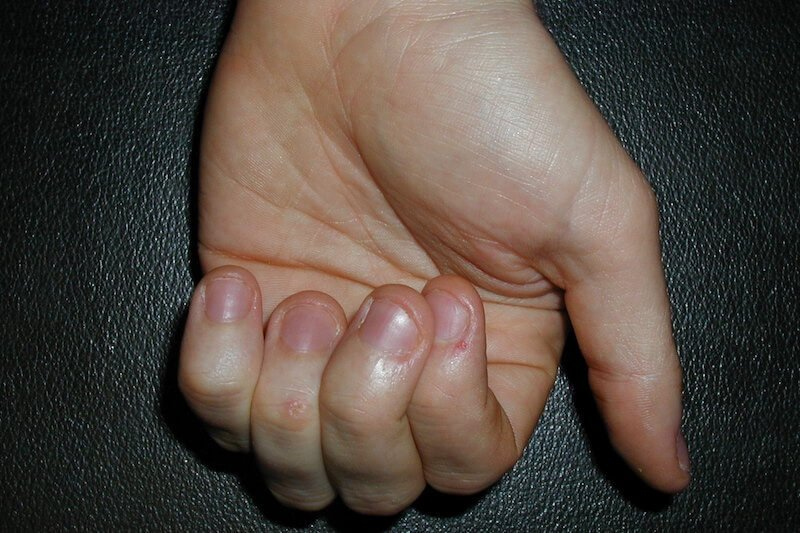 examen clinique main - traumatisme main gonflement gauche - phalanges fracture - 2 doigt qui se croise