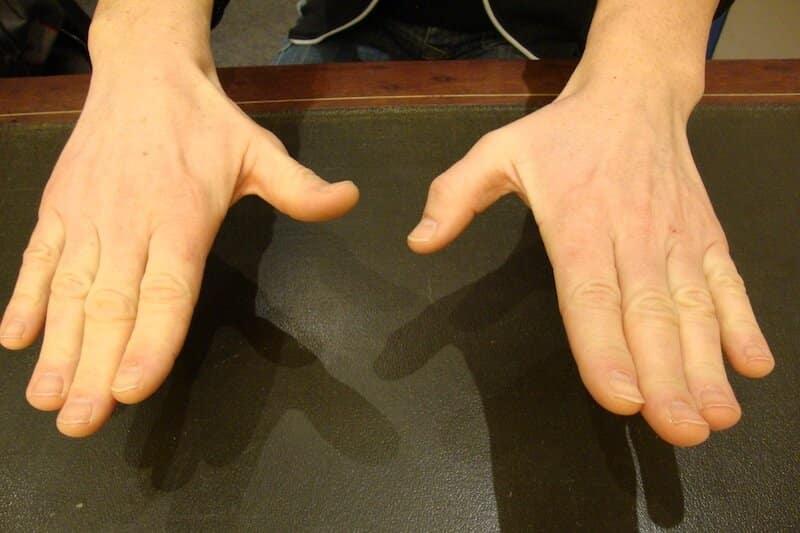 rupture tendon pouce main gauche - rupture tendon doigt main gauche - traumatisme main gauche