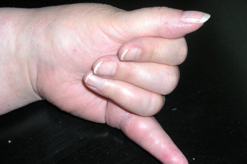 examen clinique de la main - maladie main gauche - main gonflée gauche - maladie rhumatismale des mains - rupture tendon fléchisseur 5 doigts