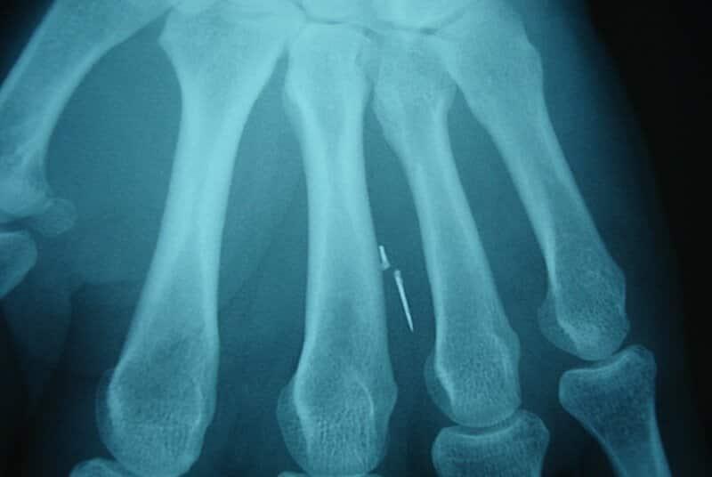 radiographie de la main - urgence main gauche - traumatisme main - aiguille dans la main