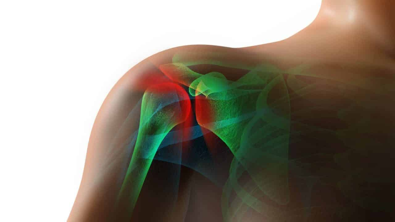 Capsulite rétractile de l'épaule et douleur
