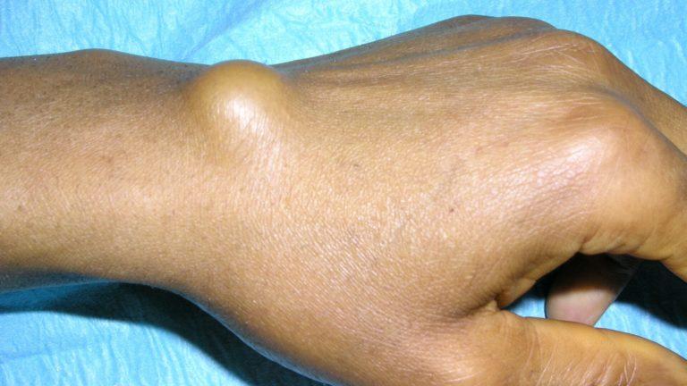 Kyste arthro synovial face dorsale poignet gauche