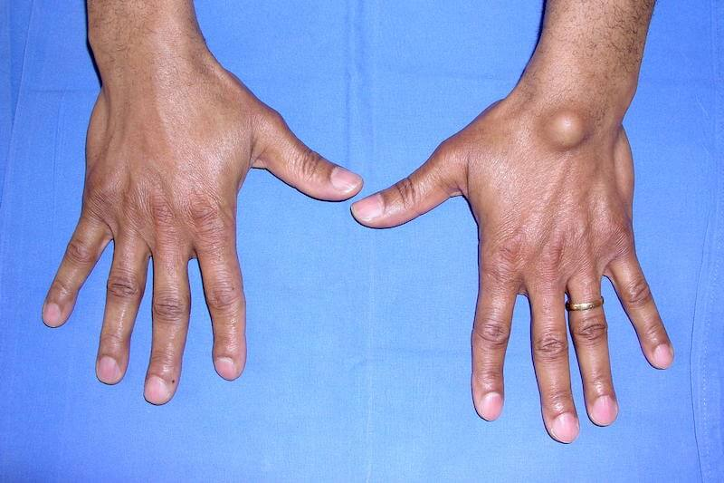 déformation poignet en forme de boule - kyste synovial au poignet gauche