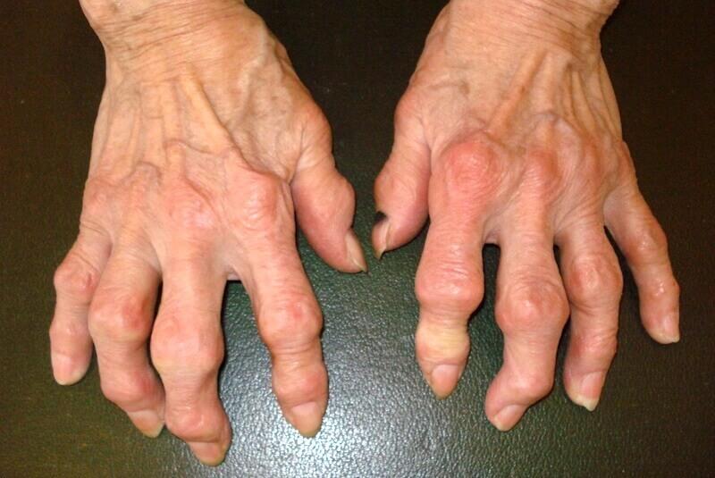 maladie des doigts déformés par l'arthrose avec nodules d Heberden et nodules de Bouchard