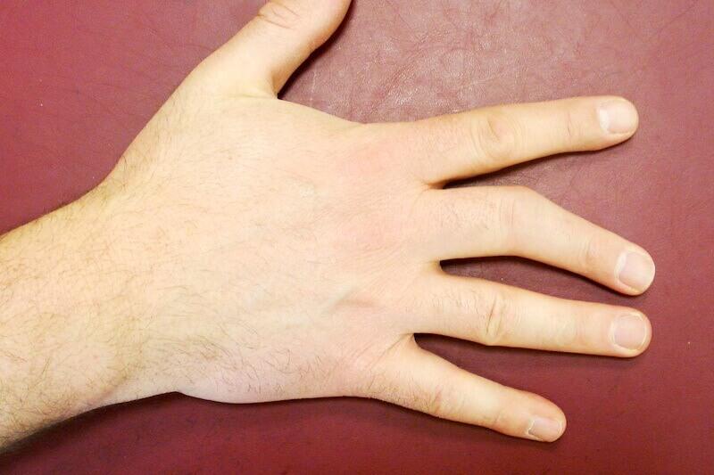doigt tordu et désaxé - cause arthrose post traumatique