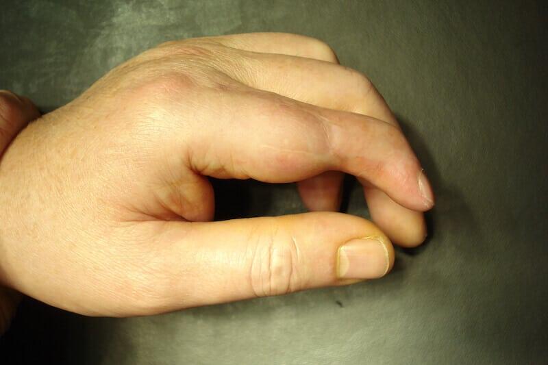maladie des doigts raides de la main - raideur index gauche séquellaire avec inflammation articulation