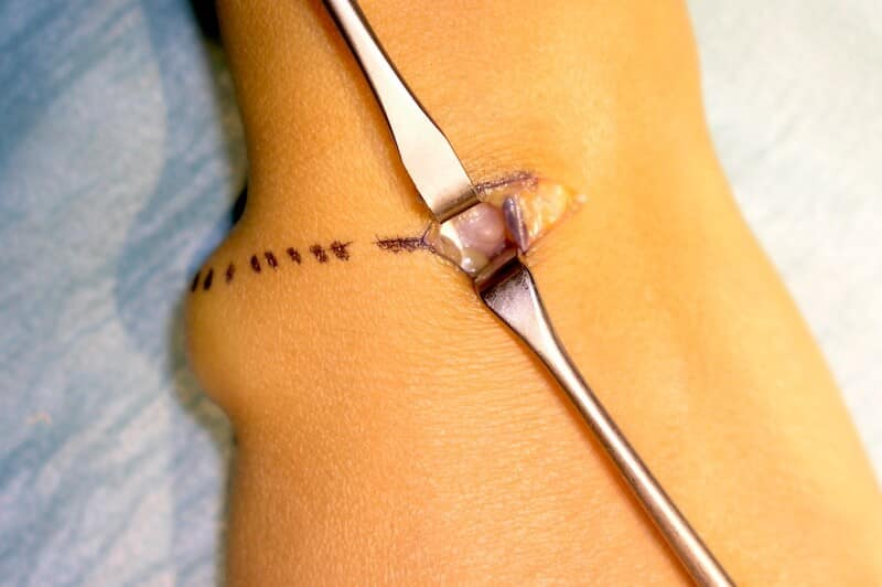 chirurgie kyste poignet - incision kyste synovial