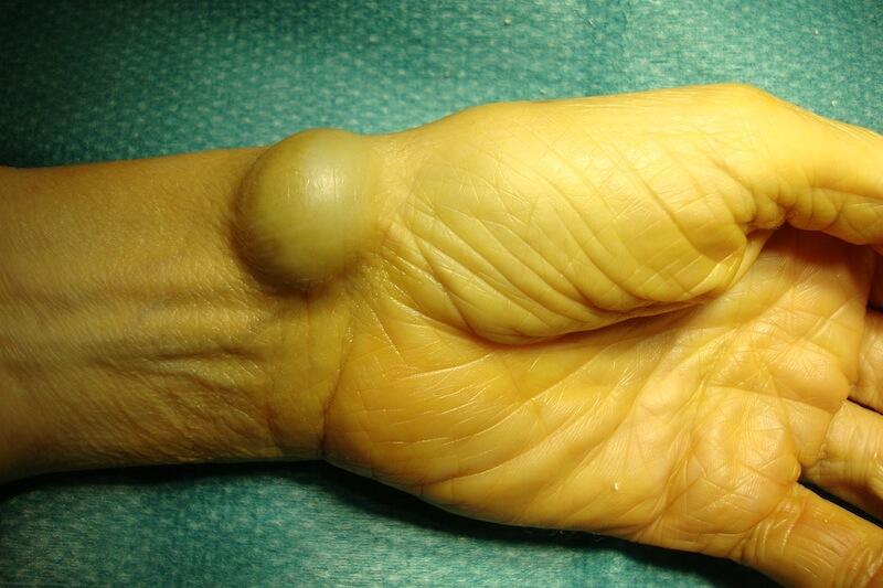 boule de kyste synovial palmaire du poignet gauche provoquant une déformation