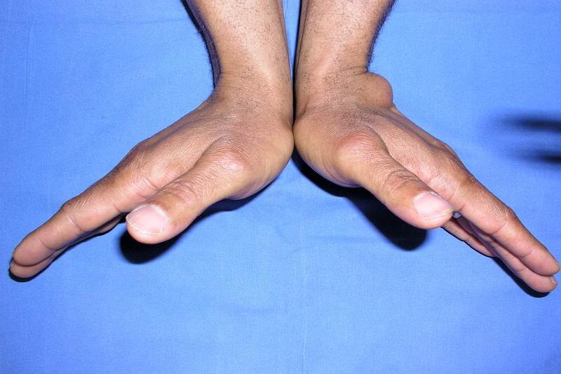 mouvement de rééducation poignet suite opération kyste synovial