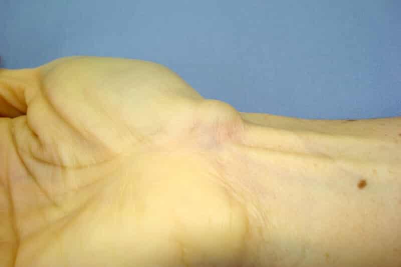 kyste tendon poignet droit due à une ténosynovite poignet