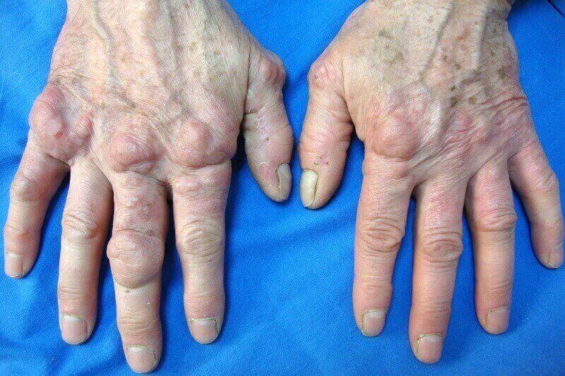 nodule doigt de la main due a une arthrose déformante des doigts de la main
