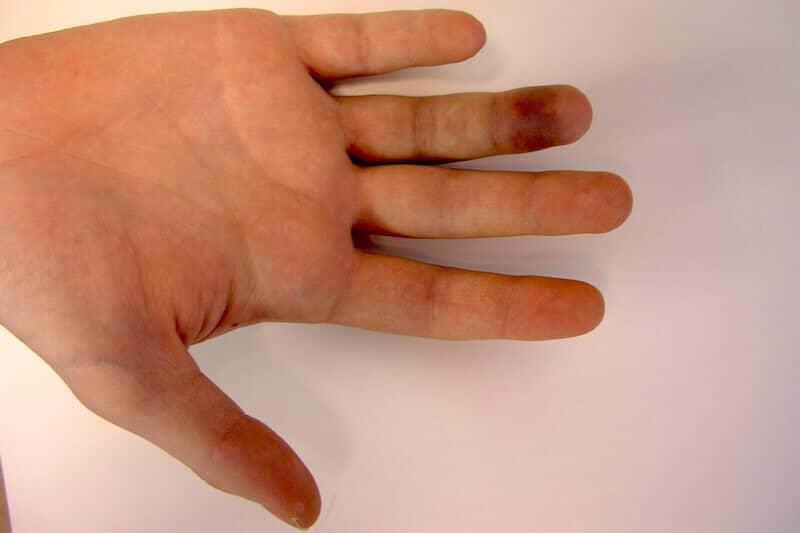 rupture tendon flechisseur doigt cause traumatisme sport - rugby ou jersey finger