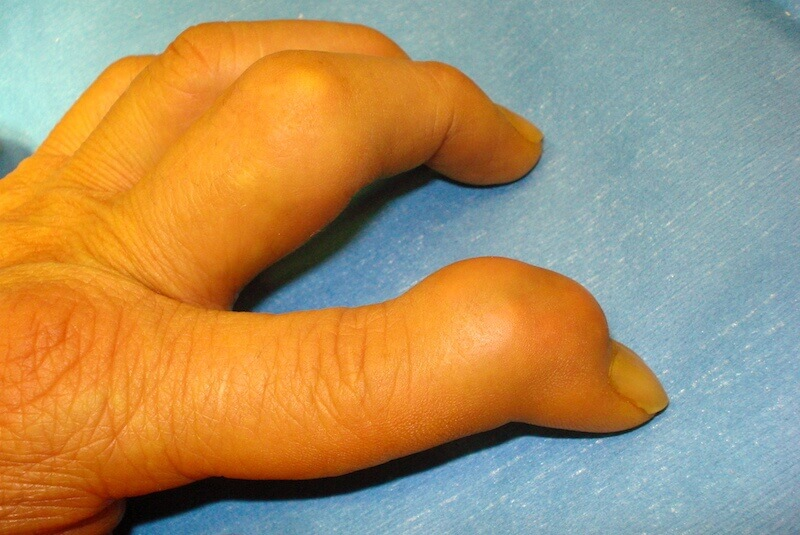 maladie des articulations des doigts - synovite des doigts de la main