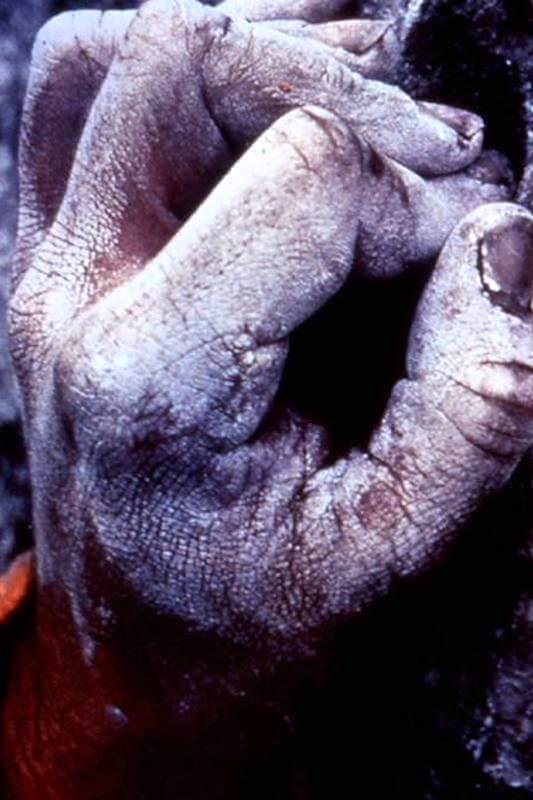 rupture poulie escalade - rupture gaine doigts grimpeur - pathologie du sportif