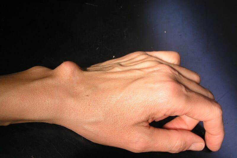 kyste du poignet gauche avec boule et déformation au dos du poignet visible