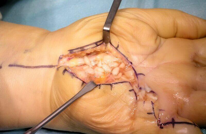 maladie des tendons des doigts de la main - infection doigt mycobactérie