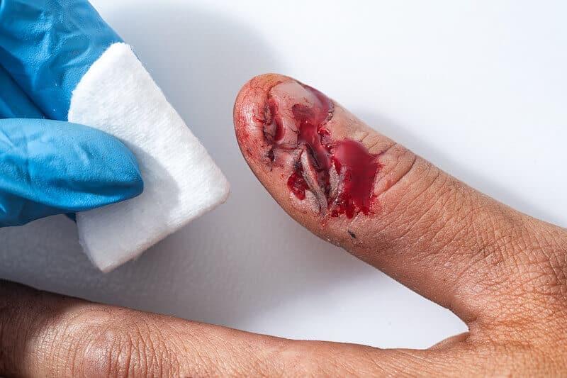 traumatisme du pouce de la main - coupure au doigt avec plaie qui saigne